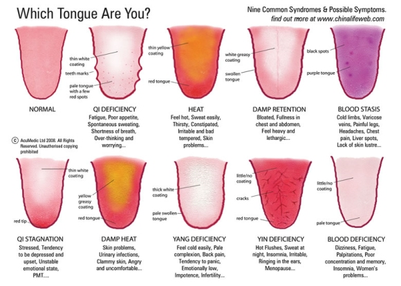 Some of the types of tongue qualities.  Note: I've lost the source of this so apologies for the lack of credit.